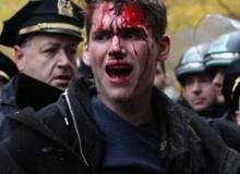 bloody arrest