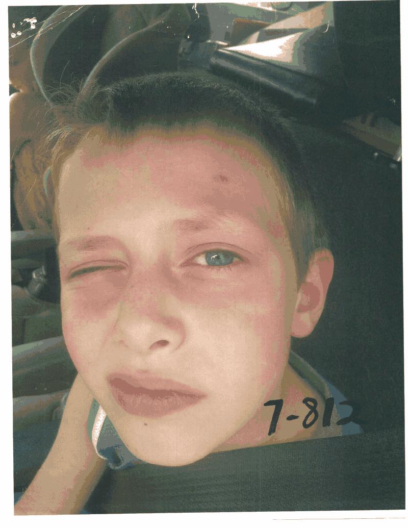 Child Eye Swollen Shut
